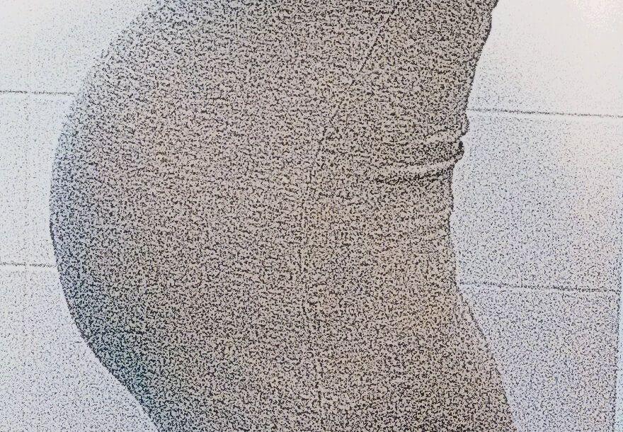 Die Salbe über der Hämorrhoide auf dem Anfangsstadium